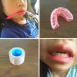 MRC矯正で子供の歯並びに変化が!実際のトレーニング内容とその効果を紹介